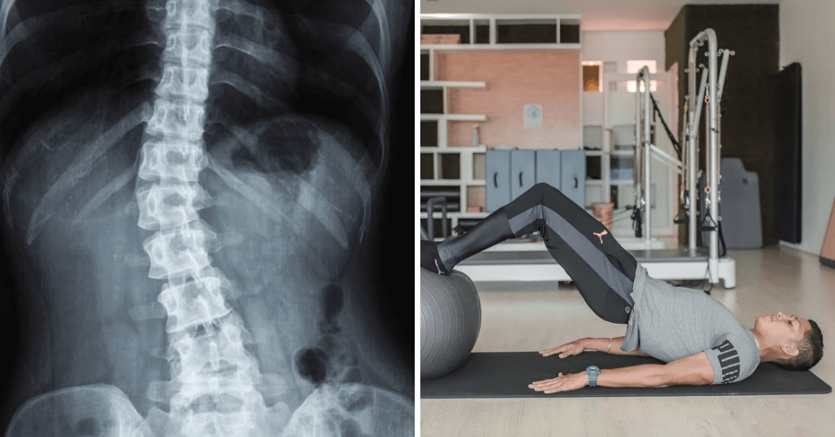 Here Are the Best Exercises That People with Scoliosis Can Do